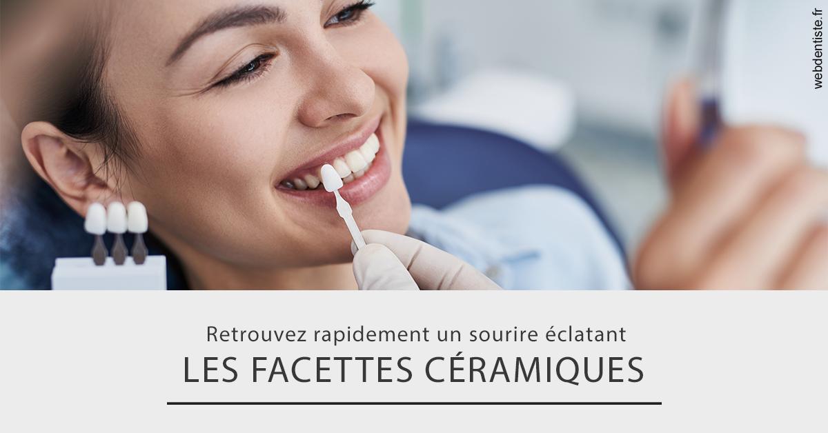 https://dr-goffoz-jf.chirurgiens-dentistes.fr/Les facettes céramiques 2