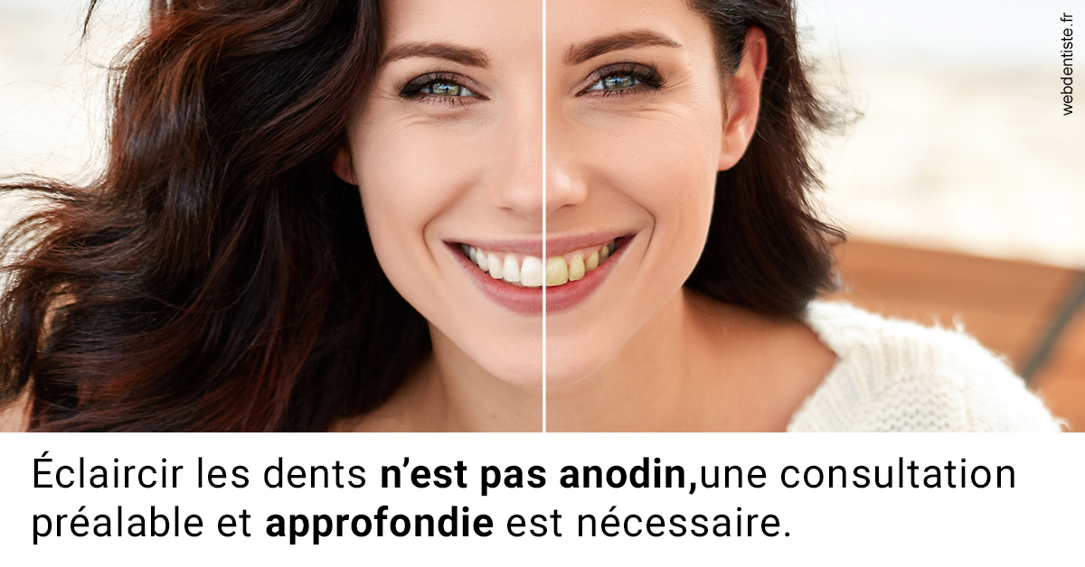 https://dr-goffoz-jf.chirurgiens-dentistes.fr/Le blanchiment 2